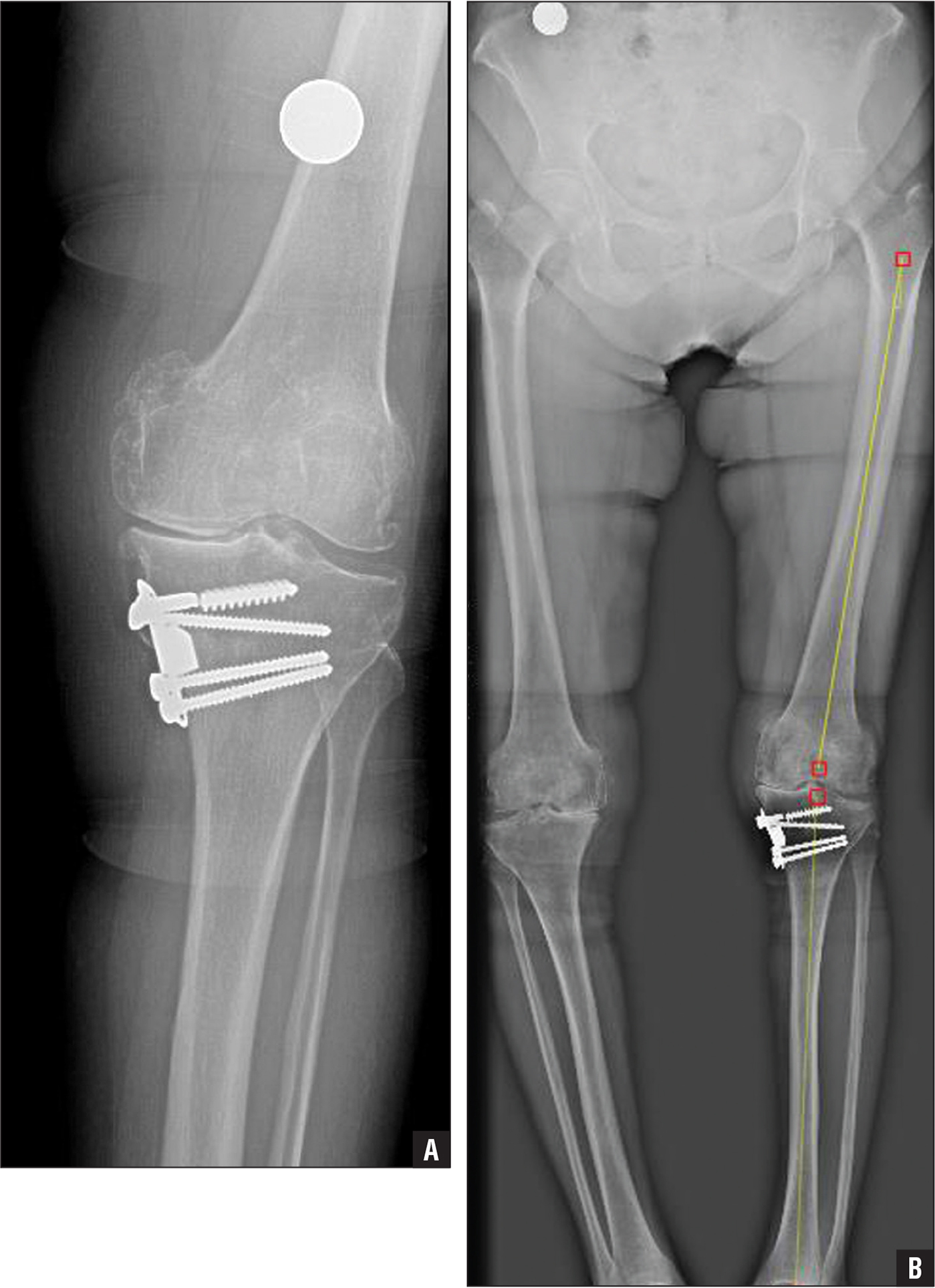 Postoperative anteroposterior radiograph of the knee (A) and orthoroentgenograph (B) of a patient with a broken screw and conservative follow-up.