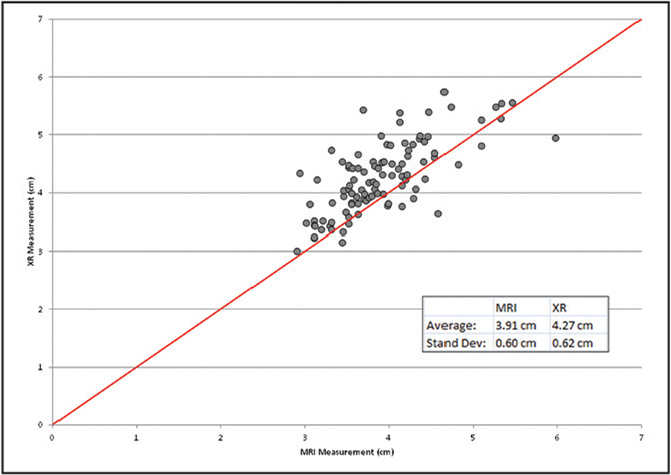A perfect correlation of radiography (XR) to magnetic resonance imaging (MRI) is demonstrated by the red line in this graph. As this graph depicts, radiography had a tendency to measure greater skin-to-capsule measurements compared with MRI. Inset within the graph gives the means and SDs of skin-to-capsule measurements for both radiography and MRI.