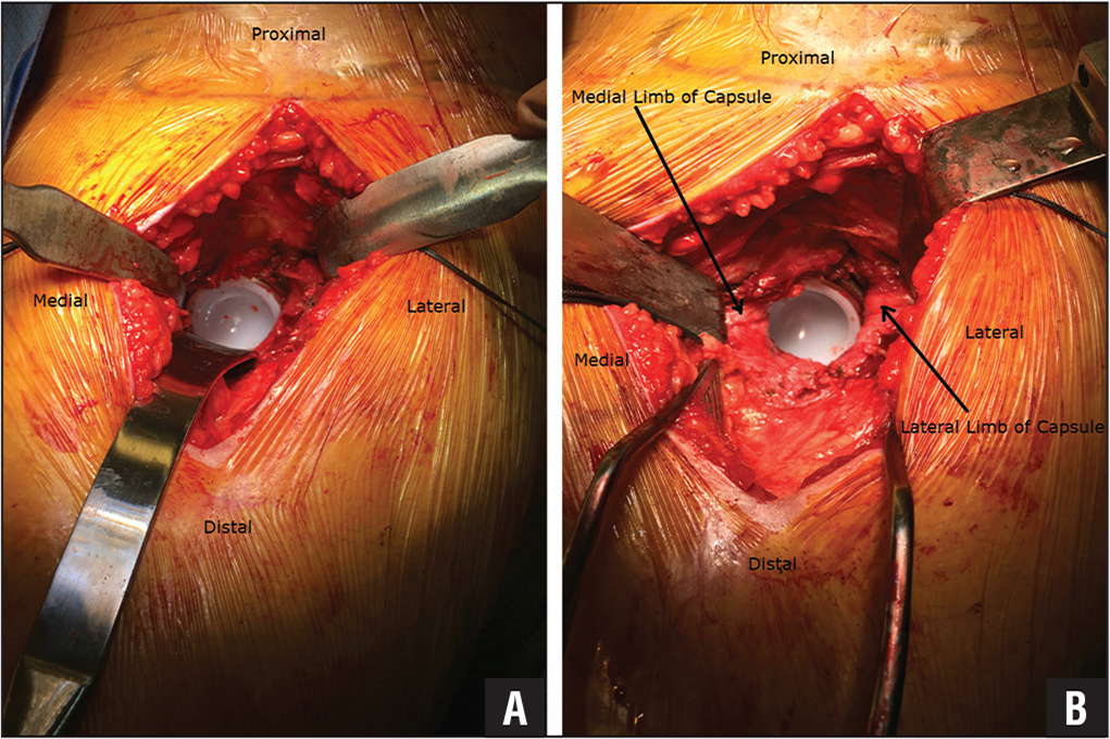 Clinical photograph of the acetabular exposure using a traditional three-retractor manual retraction technique (A), compared with the hands-free, all self-retaining retraction technique (B) in the same patient. Medial, lateral, proximal, and distal directions are labeled in each clinical photograph for orientation purposes. For the hands-free, all self-retaining retraction technique (B), the medial and lateral limbs of the anterior hip capsule are indicated by arrows.