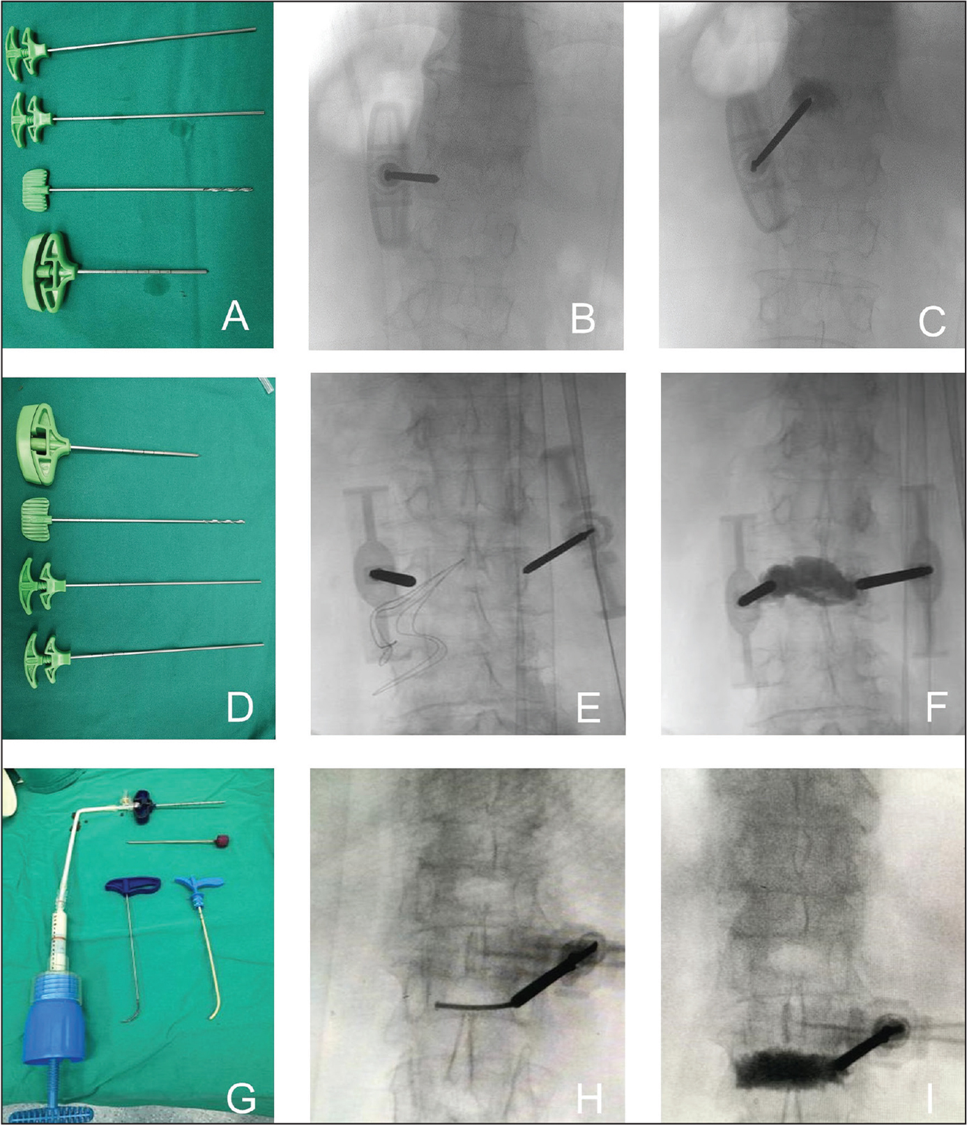 Unilateral puncture device (A): positive radiograph before (B) and after (C) injection of polymethyl methacrylate (PMMA). Bilateral puncture device (D): positive radiograph before (E) and after (F) injection of PMMA. Curved puncture device (G): positive radiograph before (H) and after (I) injection of PMMA.