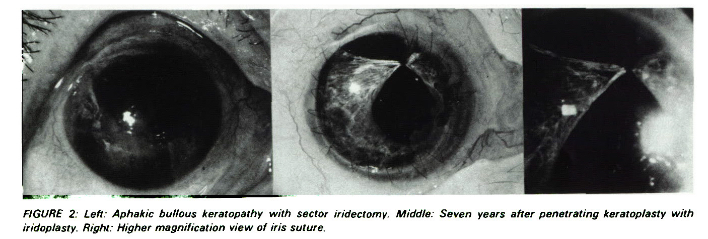 FIGURE 2: Left: Aphakic bullous keratopathy with sector iridectomy. Middle: Seven years after penetrating keratoplasty with iridoplasty. Right: Higher magnification view of iris suture.