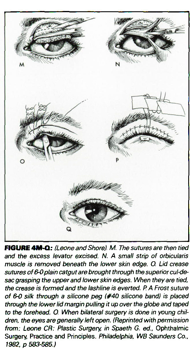 The Management of the Ptosis Patient: Part II