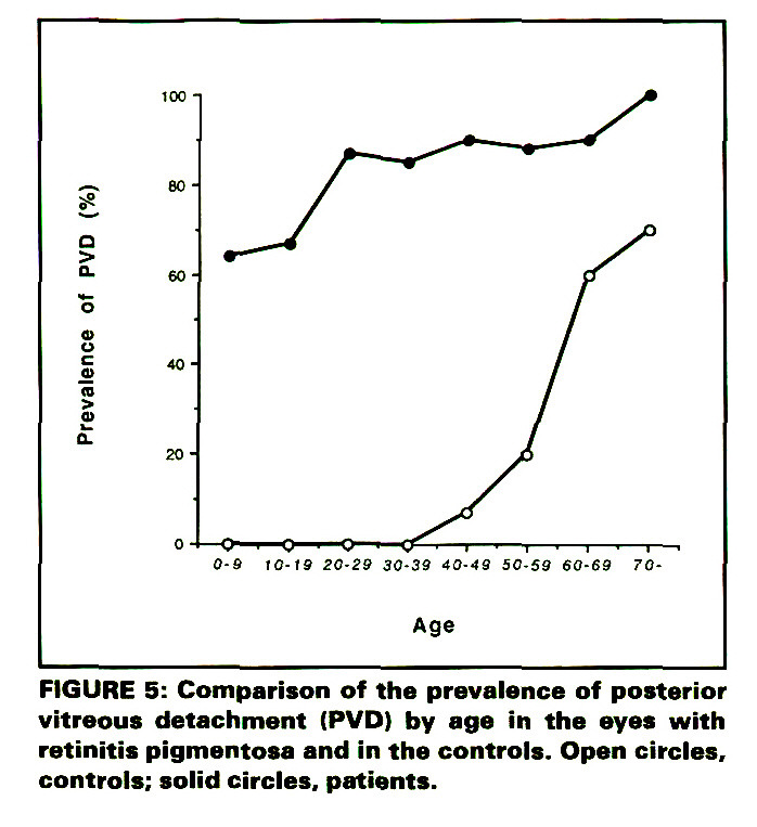 FIGURE 5: Comparison of the prevalence of posterior vitreous detachment (PVD) by age in the eyes with retinitis pigmentosa and in the controls. Open circles, controls; solid circles, patients.