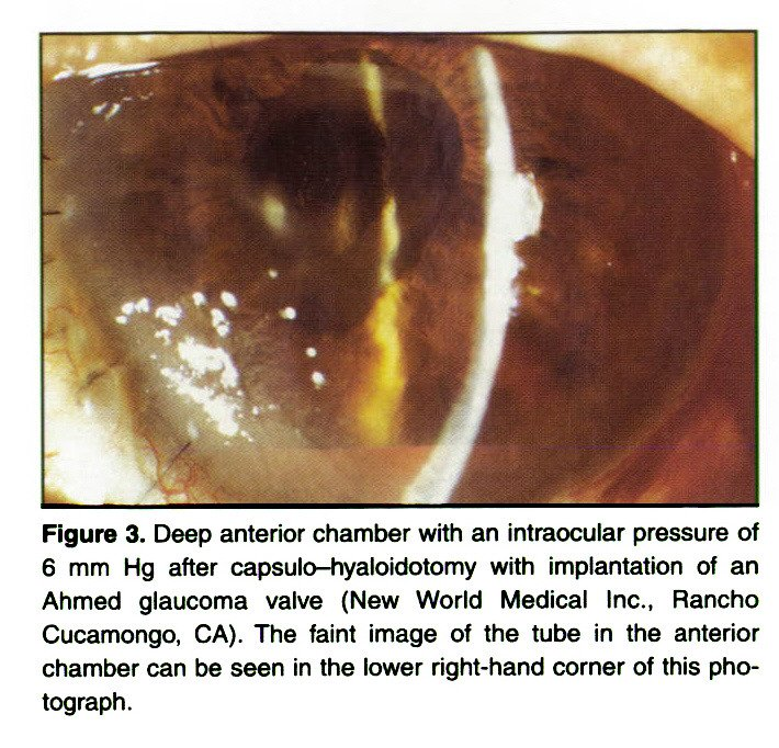 Figure 3. Deep anterior chamber with an intraocular pressure of 6 mm Hg after capsulo-hyaloidotomy with implantation of an Ahmed glaucoma valve (New World Medical Inc., Rancho Cucamongo, CA). The faint image of the tube in the anterior chamber can be seen in the lower right-hand corner of this photograph.
