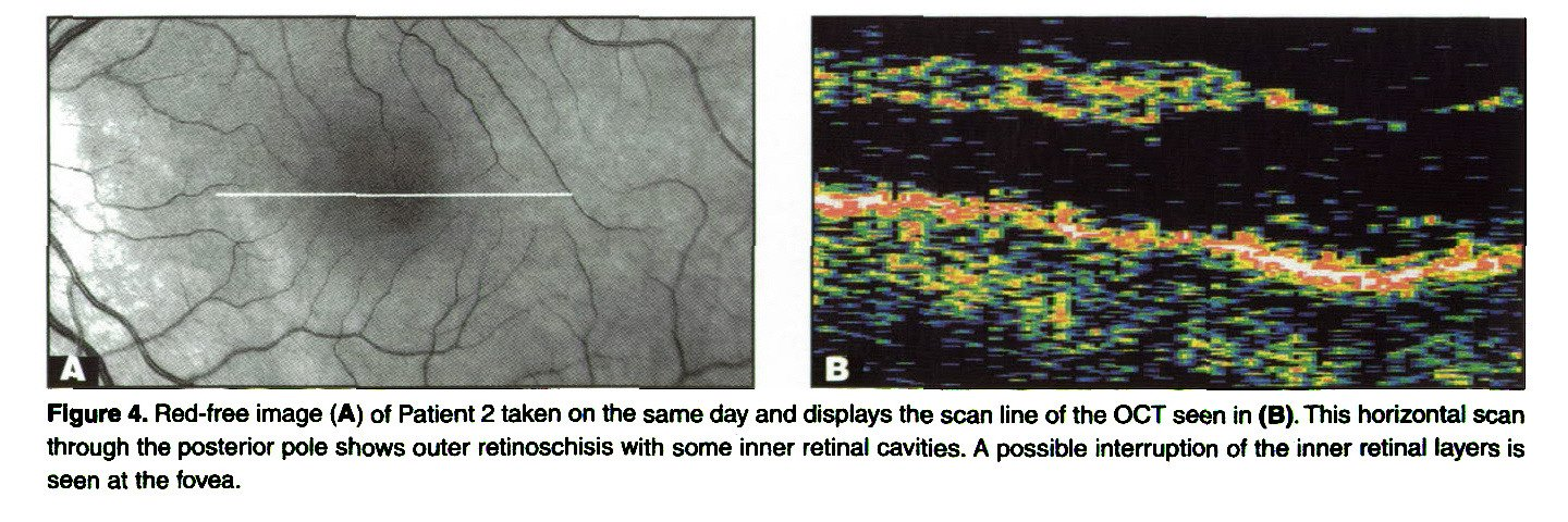 Figure 4. Red-free image (A) of Patient 2 taken on the same day and displays the scan line of the OCT seen in (B). This horizontal scan through the posterior pole shows outer retinoschisis with some inner retinal cavities. A possible interruption of the inner retinal layers is seen at the fovea.