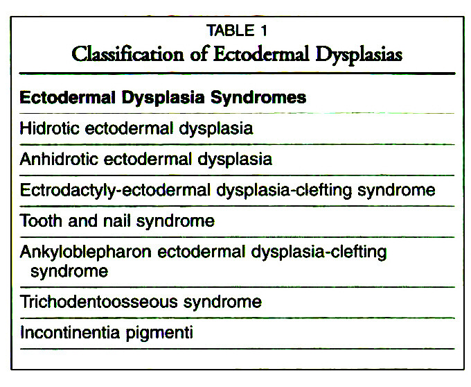 TABLE 1Classification of Ectodermal Dysplasias