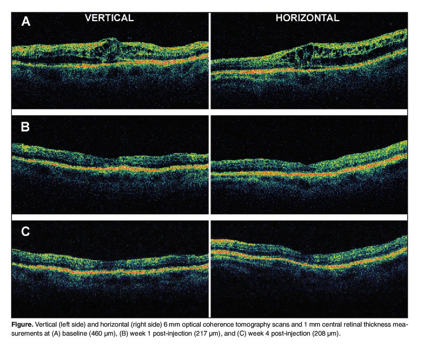 Optical Coherence Tomography Findings After an Intravitreal ...
