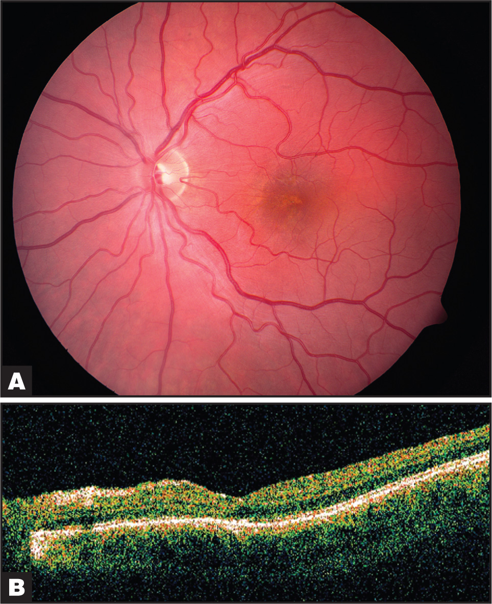 (A) Color Fundus Photograph of the Left Eye 2 Months After Vitrectomy Showing Spontaneous Detachment of the Residual Vitreous Cortex. Underlying Macular Pigmentary Changes Most Likely Resulting from the Original Closed Globe Injury Are now More Evident. Visual Acuity at This Time Was 20/80. (B) Corresponding Horizontal 6-mm Optical Coherence Tomography Scan Showing Complete Vitreous Detachment and a Foveal Depression.