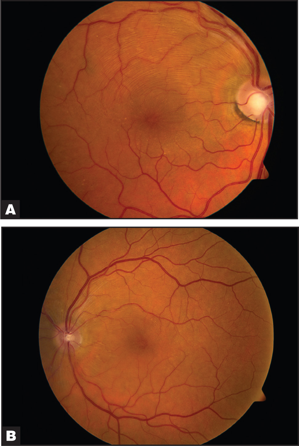 Color Photographs of the (A) Right and (B) Left Eye Showing Macular Edema and Prominent Nerve Fiber Layer.