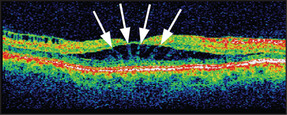 Optical Coherence Tomography Showing Bilateral Cylindrical Cystoid Intraretinal Spaces, in Which the Spaces Are Immediately Bordered by Mueller Cells with Their Processes (arrows).