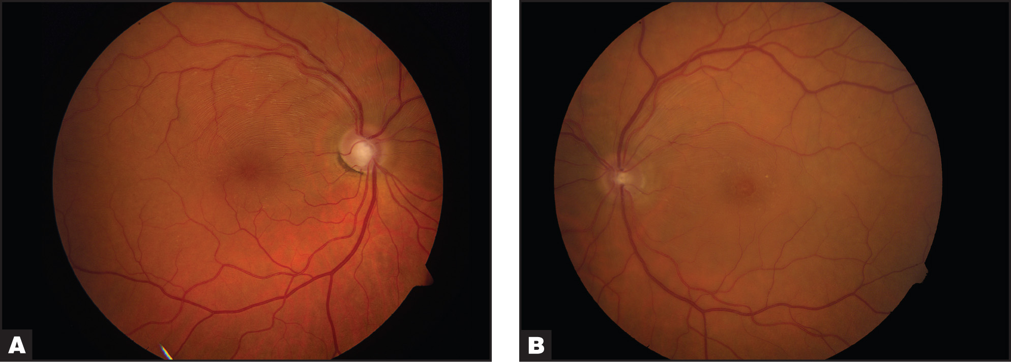 Color Photographs of the (A) Right and (B) Left Eyes Showing Macular Edema, Prominent Nerve Fiber Layer, and Appearance of Macular Pseudohole Formation in the Left Eye.