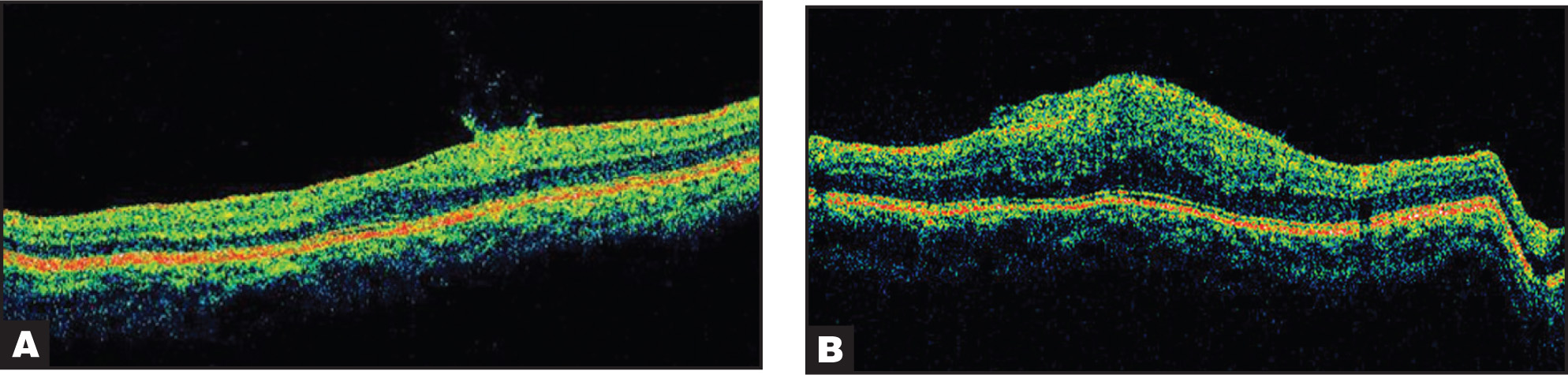 Optical Coherence Tomography (OCT) of Case 1. (A) Right Eye. Thick Epiretinal Membrane Laid Across the Surface of the Macula with Curled Edges Stretching into the Vitreoretinal Interface. Note Resultant Foveal Contour Distortion and Mild Retinal Thickening. (B) Left Eye. Thicker Epiretinal Membrane with Similar Characteristics and Marked Retinal Thickening with a Central Macular Thickness of 512 Microns.