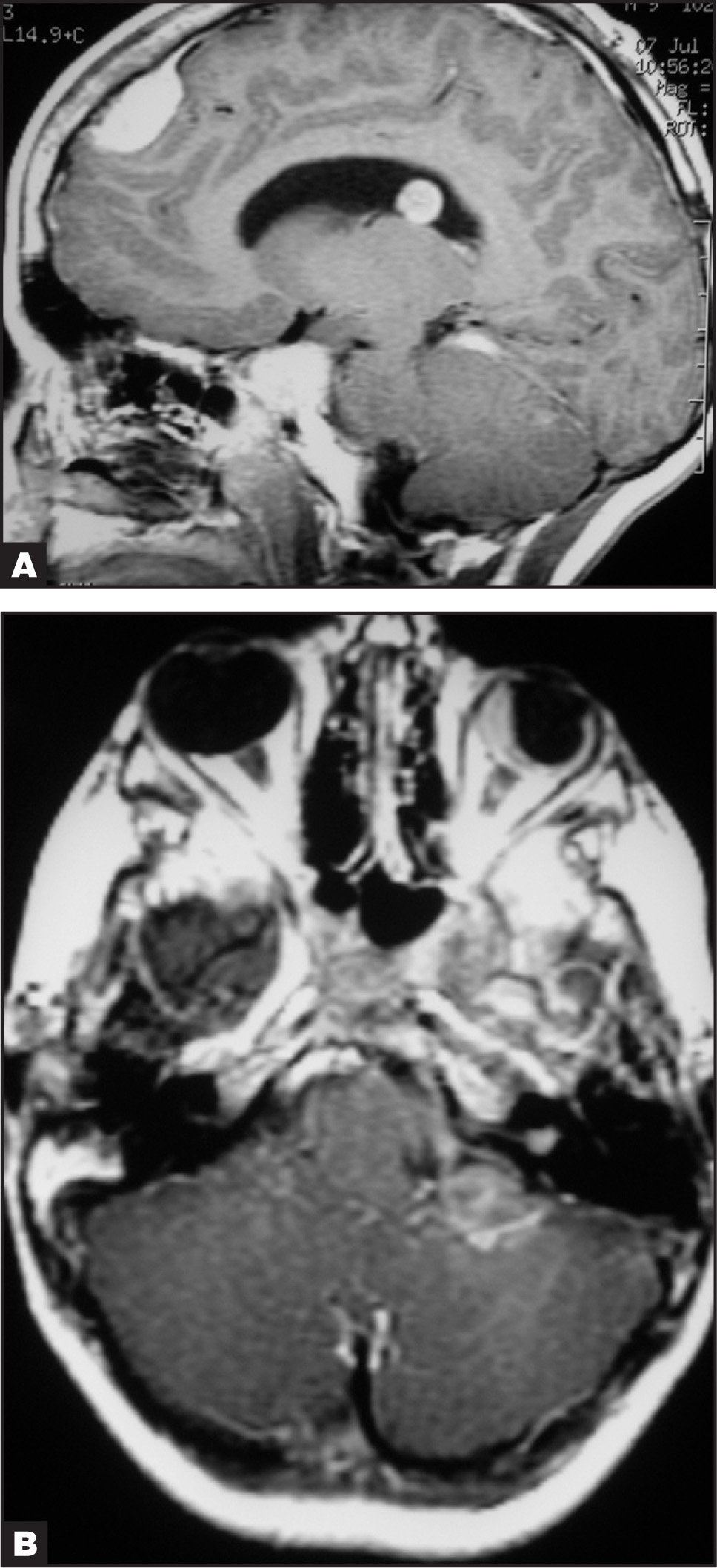 Magnetic Resonance Imaging of the Brain with Gadolinium of Case 2 Demonstrating Multiple Benign Brain Tumors, Most Consistent with Meningiomas, and an Acoustic Schwannoma (acoustic Neuroma) on the Left. (A) Sagittal T1-Weighted Image. (B) Axial T1-Weighted Image.
