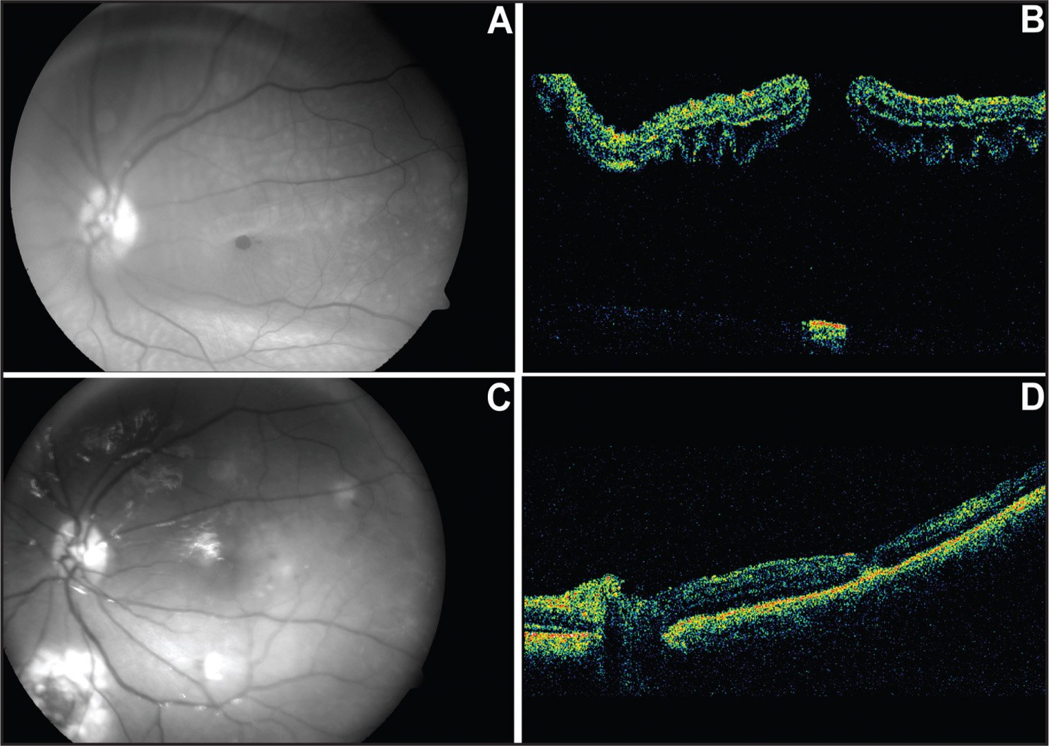 Early Closure of Macular Hole Secondary to Rhegmatogenous ...