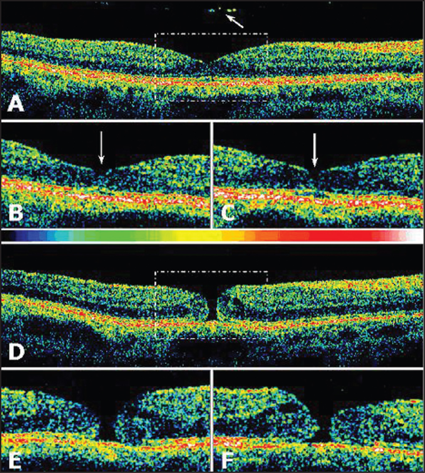 Third Generation Optical Coherence Tomography Scan of the Left Eye of a 57-Year-Old Woman with Idiopathic Age-Related Macular Hole in the Right Eye (case 1). (A) at Presentation, an Epiretinal Membrane (grade 2) and a Full-Thickness Macular Hole (Gaudric Stage 3) Were Seen in the Patient's Right Eye (data not Shown). a Horizontal (6 mm in Length) Scan of the Left Eye Revealed Complete Detachment of the Posterior Hyaloid in the Macular Region with Hyperreflective Signals in the Plane of the Detached Posterior Hyaloid over the Foveal Region (arrow). (B, C) Oblique (4 mm in Length) Scans Revealed the Extent of Disruption of the Inner Foveal Retina (arrows). (D) Five Months Later, an Epiretinal Membrane (grade 1) Associated with the Development of a Full-Thickness Macular Hole Was Seen in the Left Eye. (E, F) Oblique (4 mm in Length) Scans Revealed Complete Interruption of the Foveal Retina of Approximately 99 μm Associated with Perifoveal Intraretinal Fluid Accumulation and Attenuation of the Inner Hyperreflective Layer Corresponding to the Junction of the Inner and Outer Photoreceptor Segments, Suggesting Edema of the Outer Perifoveal Neural Retina.
