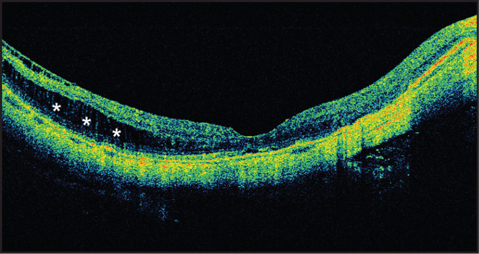 Postoperative SD-OCT Shows Marked Diminution of the Outer Retinal Schisis and Absence of the Preretinal Layer. The Foveal Contour Has Been Reestablished, but Some Schisis-Like Findings Persist (asterisks) Temporally Beyond the Zone Where the Preretinal Layer Was Removed.