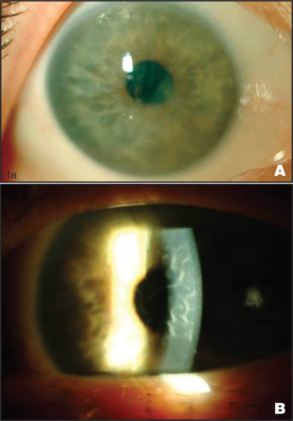 (A) Slit-Lamp Photograph of the Patient's Right Eye on Presentation, Demonstrating Diffuse Stromal and Bullous Epithelial Corneal Edema Secondary to Amantadine Use. (B) A Slit-Beam Demonstrates Marked Descemet's Membrane Folds. No Guttae Were Visible. Similar Findings Were Present in the Left Eye.