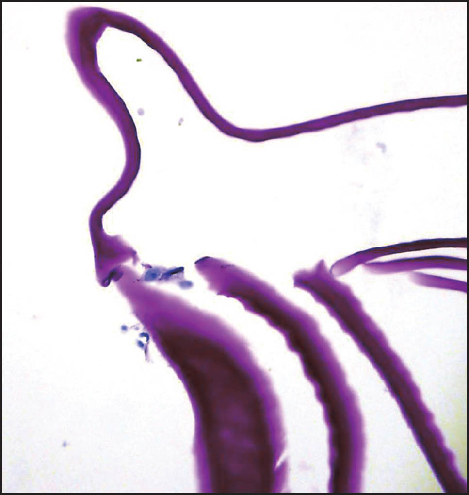 A Photomicrograph of Stripped Descemet's Membrane in the Right Eye Demonstrates the Presence of Rare Endothelial Cells. No Guttae Were Present (hematoxylin–Eosin, Original Magnification ×40).