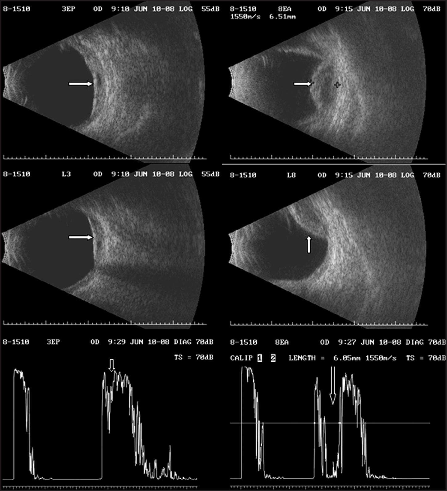 Echography of the Right Eye at Time of Diagnosis of Posterior Scleritis. Transverse and Longitudinal B-Scans and Standardized A-Scan Showed that the Thickening of the Ocular Coats Remained Nasally (arrows) but the Reflectivity Was Higher than at the Initial Visit (down Arrow) (left Column). Transverse and Longitudinal B-Scans Showed What Appeared to Be Choroidal Detachments (side and up Arrow) (right Column). The Echo Dense Signals in the Suprachoroidal Space Signified that This Material Was Non-Serous in Nature. The Standardized A-Scan Showed Low Amplitude Signals (down Arrow) Produced by the Suprachoroidal Substance, Which could be Consistent with Hemorrhage.