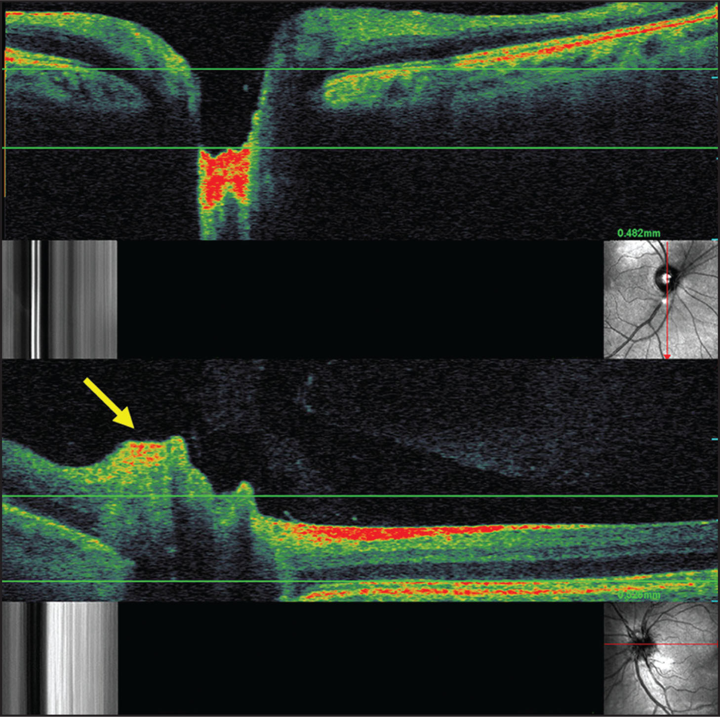 Optical Coherence Tomography/scanning Laser Ophthalmoscopy (OCT/SLO) of Normal Control and Optic Nerve Head Drusen. (Top) Transverse OCT/SLO Scan of Healthy Optic Nerve, Demonstrating Smooth Contour of Nerve Fiber Layer at Disc Margin, Converging to a Discernible Cup that Has a Base Shallower than the Level of the Retinal Pigment Epithelium (measured by Placing the First Horizontal Caliper at the Inner Aspect of the Red Stripe Designating the Retinal Pigment Epithelium, and Placing the Second Caliper at the Level of the Cup Base). In Each OCT/SLO Image, the Lower Right Hand Figure Demonstrates the Real-Time SLO Image. The Red Arrow Through the SLO Image Demonstrates Exact Positioning of the OCT Image. (Bottom) SLO-Guided OCT Image Is Demonstrating an Area of Hyperreflectivity with Overlying Nerve Fiber Layer Displacement (yellow Arrow) and Underlying Lucency. The Discernible Cup Is Significantly Elevated from the Reference Level of the Retinal Pigment Epithelium, Measuring 0.526 mm.