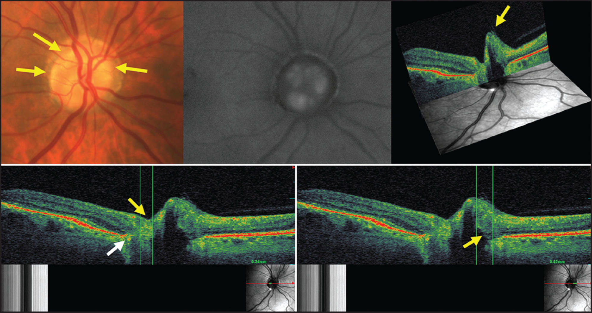 Optical Coherence Tomography/scanning Laser Ophthalmoscopy (OCT/SLO) of Optic Nerve Head Drusen. (Top Left) Multiple Optic Nerve Head Drusen (arrows) Are Visible in the Right Eye. (Top Middle) Corresponding Autofluorescence Imaging Demonstrating Diffuse Optic Nerve Head Drusen, Grouped Nasally, Temporally, and Superiorly. (Top Right) Intersecting Plane Analysis of Optic Nerve Head Drusen. Transverse OCT Image Is Intersected with the SLO Fundus Image, Demonstrating a Three-Dimensional Displacement of Nerve Fiber Layer Secondary to Optic Nerve Head Drusen (arrow). (B Ottom Left) OCT/SLO B-Scan Showing the Hyperreflective Temporal Drusen (yellow Arrow) with Underlying Shadowing and Adjacent Retinal Pigment Epithelium Disorganization (white Arrow). (B Ottom Right) OCT/SLO B-Scan Demonstrating Nasal Drusen with Shadowing and Overlying Displacement of the Nerve Fiber Layer. In Both OCT/SLO Images on the Bottom, the SLO Image Is Seen on the Bottom Right with the Red Arrow Indicating the Exact Positioning of the OCT Image.