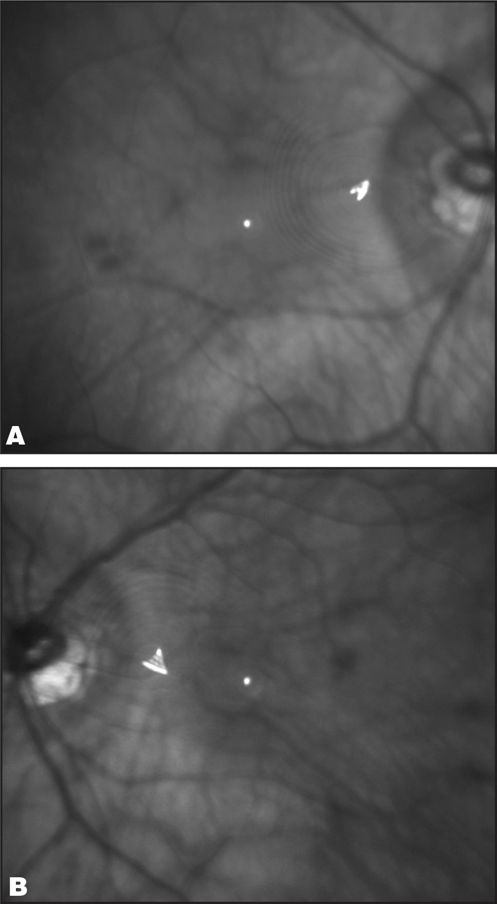 Monochromatic Infrared (820-nm) 30° Scanning Laser Ophthalmoscope Images Show a Prominent Concentric Ring Artifact Centrally in the Patient's (A) Right and (B) Left Retinas. The Diffractive Optical Element on the Anterior Surface of the ReSTOR Intraocular Lens (SN60D3; Alcon Laboratories, Inc., Fort Worth, TX) is the Origin for (1) the Scanning Laser Ophthalmoscope Artifact Caused by Optical Interference and (2) the Patient's Dysphotopsia Caused by Optical Projection or Diffraction.