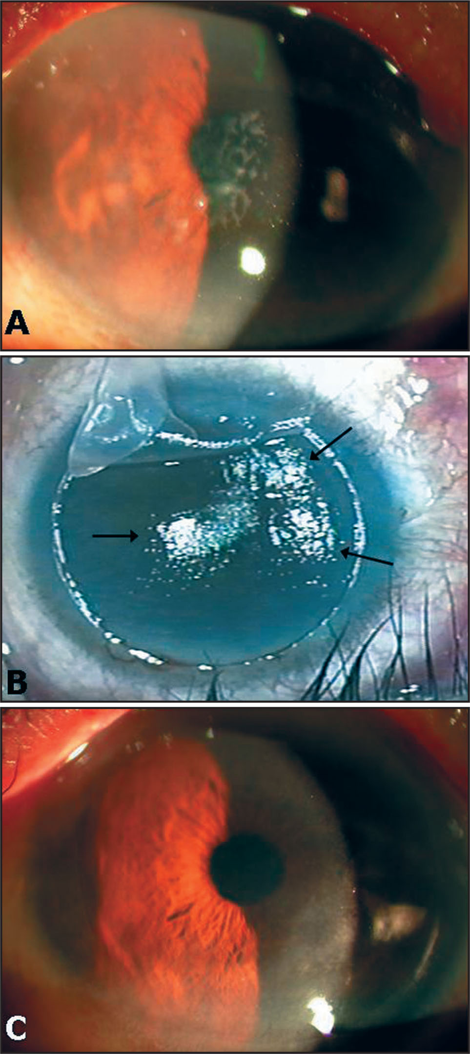 Case Photographs. (A) Preoperative Photograph Showing Cirrus-Like Cloudy Anterior Corneal Opacity Involving the Pupil Center. (B) When Lifting the Flap, Mild Resistance Was Encountered Beneath the Opaque Area. After Removal of the Corneal Flap, a Slightly Irregular Stromal Surface Was Observed (black Arrows). (C) A Stable and Smooth Corneal Surface Was Observed 2 Months After Lamellar Keratectomy Using a Femtosecond Laser.