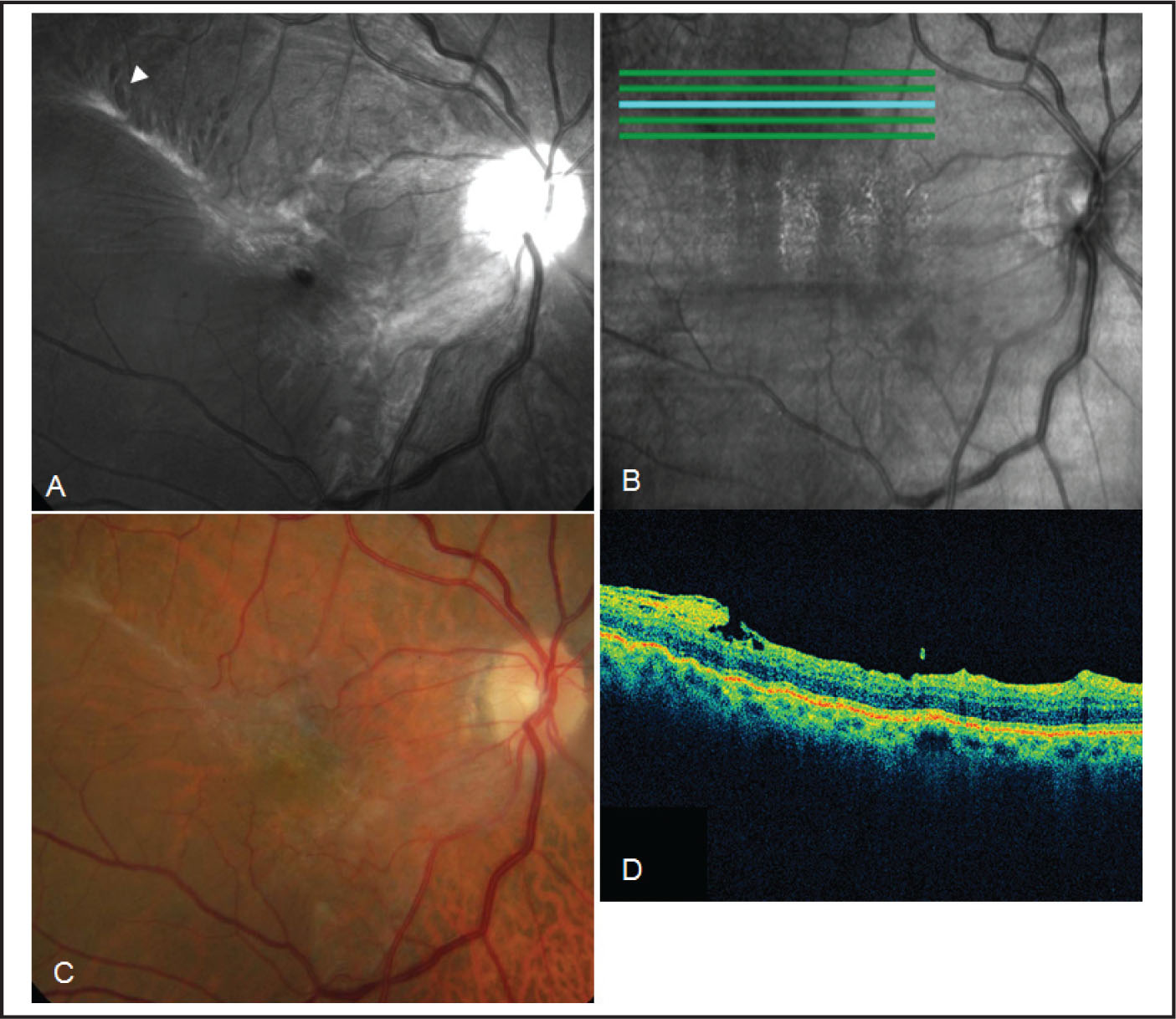 Preoperative Findings in Case 2. (A) Blue Reflectance Fundus Photograph Showing an Alveolar Cluster of Retinal Microholes Present on the Edge of the Epiretinal Membrane (thick Arrow). (B) The Corresponding Virtual Optical Coherence Tomography (OCT) Fundus Photograph Acquired with Spectral Domain OCT and Correlated with Blue Reflectance Fundus Photograph. (C) Color Fundus Photograph Showing a Contractile Epiretinal Membrane Involving the Fovea and Distorting the Superotemporal Retinal Vessels. The Lamellar Microholes Are Hardly Visible. (D) Scan Images with Spectral Domain OCT of the Lamellar Microholes, Which Shows the Small Interruption of the Outer Retina from Internal Limiting Membrane to One-Third of the Thickness of the Retina (arrow).