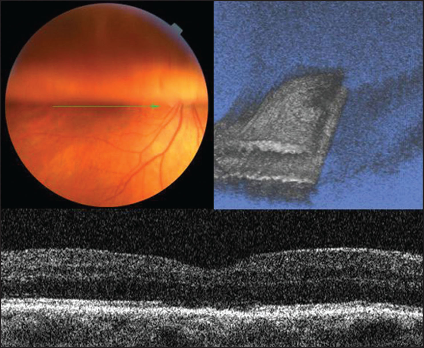 Three-Dimensional Fourier-Domain Optical Coherence Tomography (FD-OCT) of a Patient 2 Weeks Following Surgery with a 50% Vitreous Cavity Fill of SF6 Gas. (Upper Left) Arrow Indicates the Plane of Scanning. The Fovea Is not Visualized on Either Biomicroscopy or Fundus Photography Due to Masking by the Lower Edge of the Gas Bubble. (Upper Right) Three-Dimensional Scan of 50% Gas Effects on Interferometry Image. Lack of Intraretinal FD-OCT Signal Due to Intravitreal Gas Bubble Above the Fovea (right Side of Scan), with a Much Higher Retinal Signal Below the Bubble Anterior to the Macula (left Side of Scan). (Lower) Horizontal FD-OCT Demonstrates Anatomical Hole Closure and There Are No Reflectivity Changes Associated with Gas–Inner Retinal Tamponade.