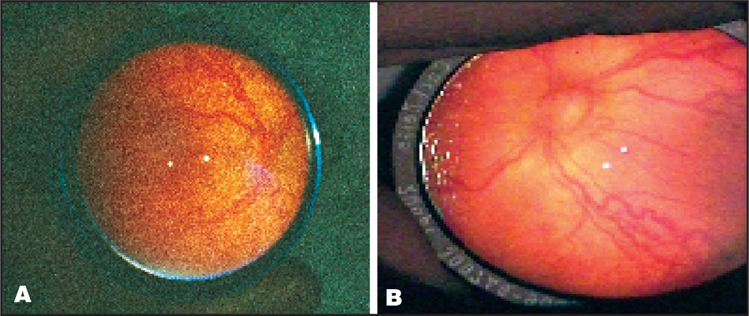 Zone-1 ROP (Case 1) with Severe plus Disease. (a) Right Eye. (b) Left Eye.