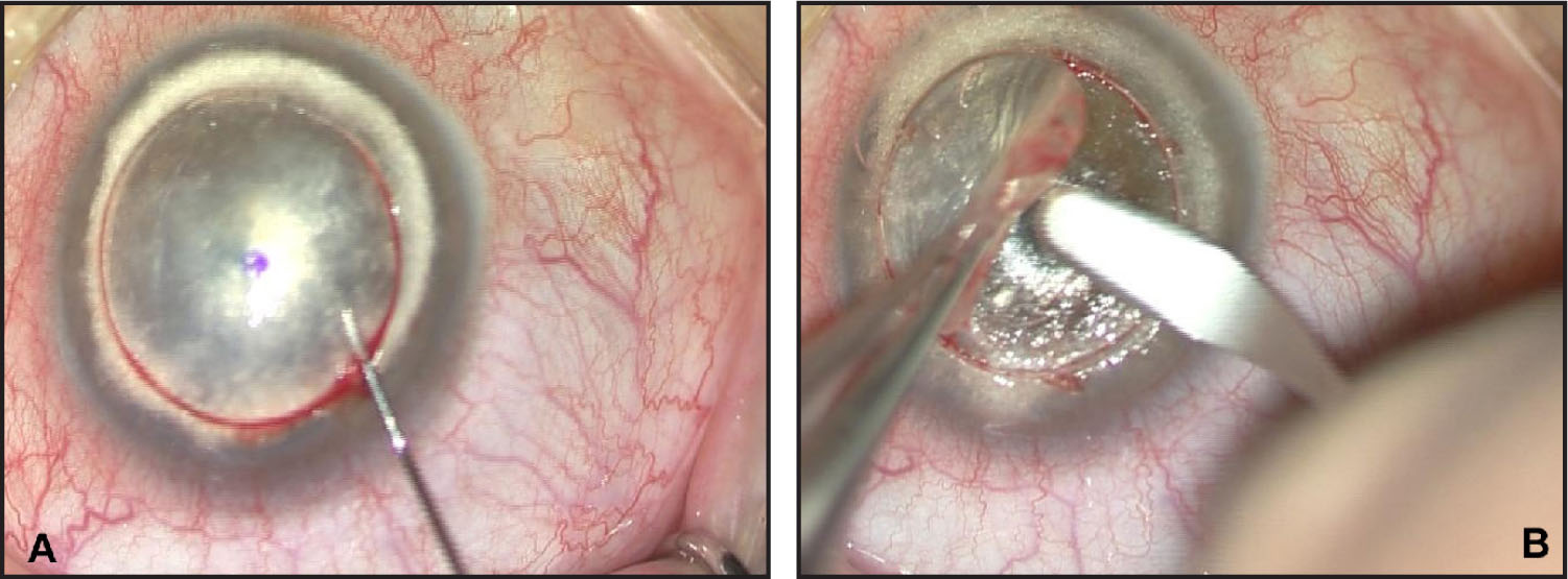 "Intraoperative Images During Deep Lamellar Keratoplasty Showing the ""big Bubble"", Seen as a Circular Disk with Dense White Edge (A). In (B) We Can See the Anterior Keratectomy with a Sharp Crescent Blade."