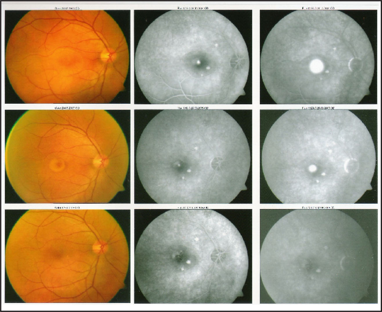 Upper Row (left): Right Fundus Showed a Circular Elevation in the Macular Area Suggestive of Neurosensory Detachment. Upper Row (middle & Right): Ink-Blot Type of RPE Leak Abutting Center of the Fovea Along with Three Tiny RPE Detachments. Middle Row (left): Subretinal Fibrinous Exudates Have Appeared. Middle Row (middle & Right): Persistence of RPE Leaks and RPE Detachments. Lower Row (left): Mild Alteration of RPE at the Treated Area of TTT Along with Total Disappearance of Subretinal Exudates and Fluid. Lower Row (middle & Right): Obliteration of RPE Leak at the Treated Area of TTT, RPE Detachments Are Faintly Visible.