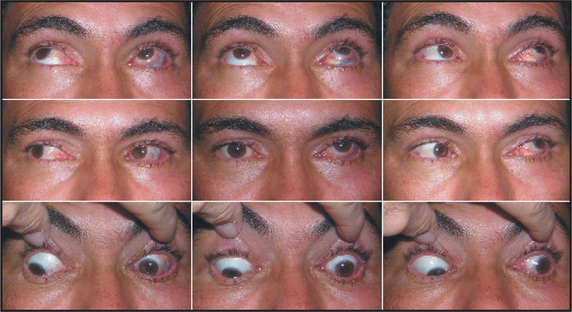 Preoperative Diagnostic Gaze Positions Demonstrating Left Hypertropia, Which Increased in Infraversions.