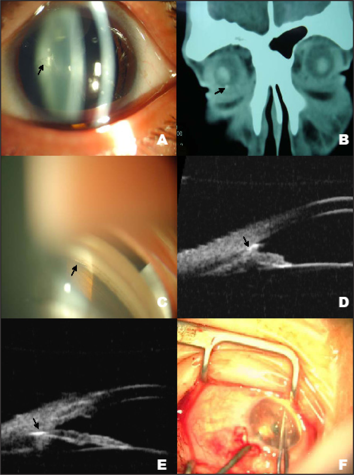 (A) Slitlamp View of the Left Eye Showed a Mild Conjunctival Injection, a 1mm Full-Thickness Self-Healed Corneal Wound and a Small Triangular Rupture in the Anterior Lens Capsule (arrow), Without Evidence of Cataract Formation. (B) A Coronal CT Scan Revealed Small Dense Radio-Opaque Intraocular Foreign Body (arrow) at 6:30 Position. (C) Gonioscopic View of the Left Eye Showed a Silvery Metallic Fragment (arrow) in the Inferior Angle at 6:30 Position. (D) Preoperative UBM View of the Left Eye Showed a Foreign Body (arrow) in the Inferior Angle at 6:30 Position. (E) Five Days After the First Surgery, UBM of the Left Eye Showed Peripheral Anterior Synechiae and the Foreign Body (arrow) Embedded in Angle Structures. (F) Intraoperative Photograph Showed the Removal of the Foreign Body by a Forceps Under Endoscopic Guidance.