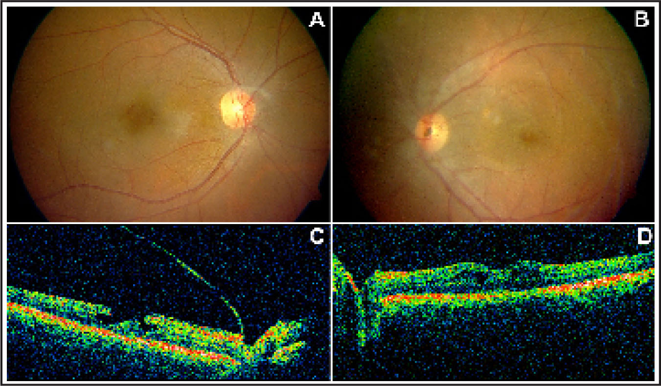 Pre-Macular Hole Status in Bilateral Recurrent Uveitis. (A) Fundus View of the Patient's Right Eye Shows Cystoid Macular Changes with a Central Excavation Suggestive of a Macular Hole. (B) Left Eye View is Marred by the Cataractous Changes, but Macular Cystic Changes are Faintly Discernible. Also Note the Pigment Dusting on the Optic Disc. (C) Optical Coherence Tomography (OCT) of the Right Eye (10 mm, Horizontal) Shows a Lamellar Macular Hole, the More Common Sequel of Chronic Macular Edema. The Complete Vitreomacular Separation Indicates that Status Quo is Likely to Prevail. (D) OCT of the Left Eye Demonstrates Macular Cystic Changes More Clearly than the Fundus Picture. There is No Vitreomacular Separation Yet.