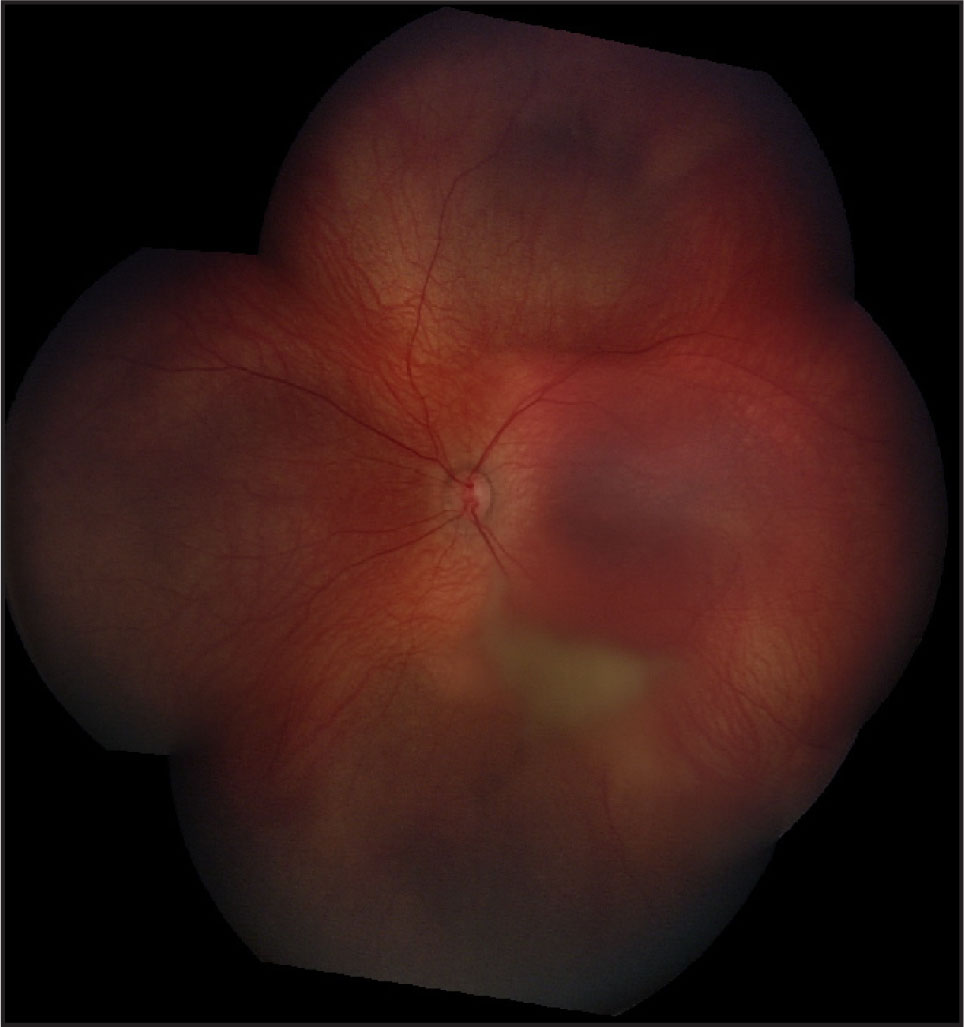 Montage Photograph of the Left Fundus with Hemorrhage into an Inferior Schisis Cavity.