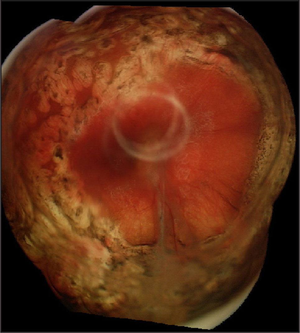 4 Weeks After Extended Tamponade with PFnO, an Inferior Tractional Retinal Detachment Recurred but Spared the Macula. Numerous Emulsified PFnO Bubbles Are Seen Anteriorly.