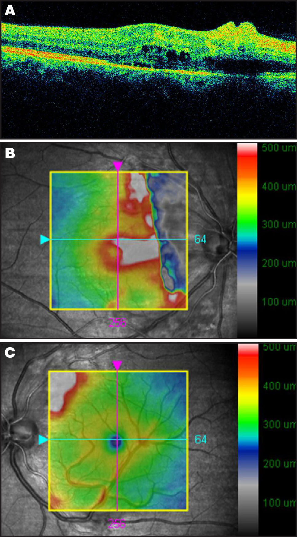 (A) Cirrus HD-OCT of the Right Eye Demonstrated Focal Swelling of the Retinal Nerve Fiber Layer RNFL, which Corresponded to the Cotton-Wool Spots Seen Clinically. Subretinal Fluid was Present Centrally. Central Subfield Thickness = 461 μm, Volume = 11.3 mm3, Average Thickness= 313 μm). (B) Cirrus HD-OCT Overlay of the Right Eye is Showing Significant Retinal Thickening Corresponding to Cotton-Wool Spots Seen Clinically with Extension Centrally to Involve the Fovea. The Peripapillary Macular Region has Marked Edema, which did not Fit on the Standard Micrometer Scale. (C) Cirrus HD-OCT Overlay of the Left Eye is Showing Macular Thickening Supranasally Corresponding to the Cotton-Wool Spots Seen Clinically. The Edema does not Extend into the Foveal Region.