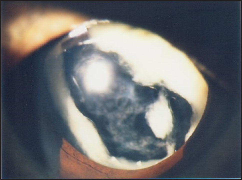 Slitlamp Photo of RE Preoperatively (with Pupil Dilatation).