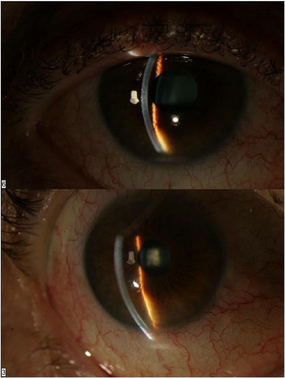 Slit Lamp Photograph of the Right Eye Before (top) and After Laser Iridotomy (bottom). Note the Loss of the Iris Bombe and the Significantly Deeper Chamber After the Laser Peripheral Iridotomy.