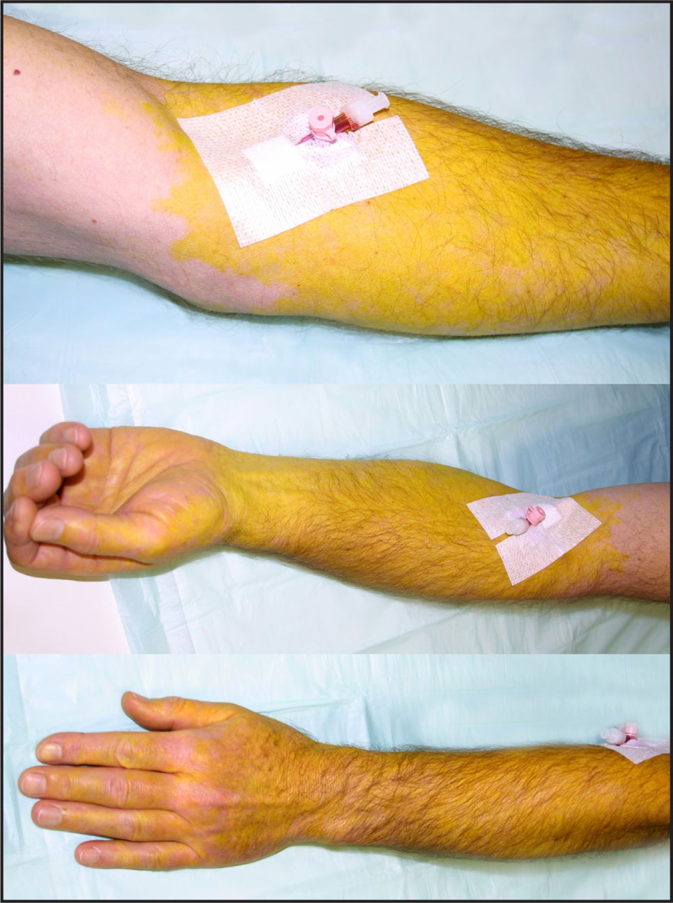 Sharply Demarcated Yellow Discoloration of the Skin Distal to the Injection Site Documented a Few Minutes After the Inadvertent Intra-Arterial Injection of Fluorescein.