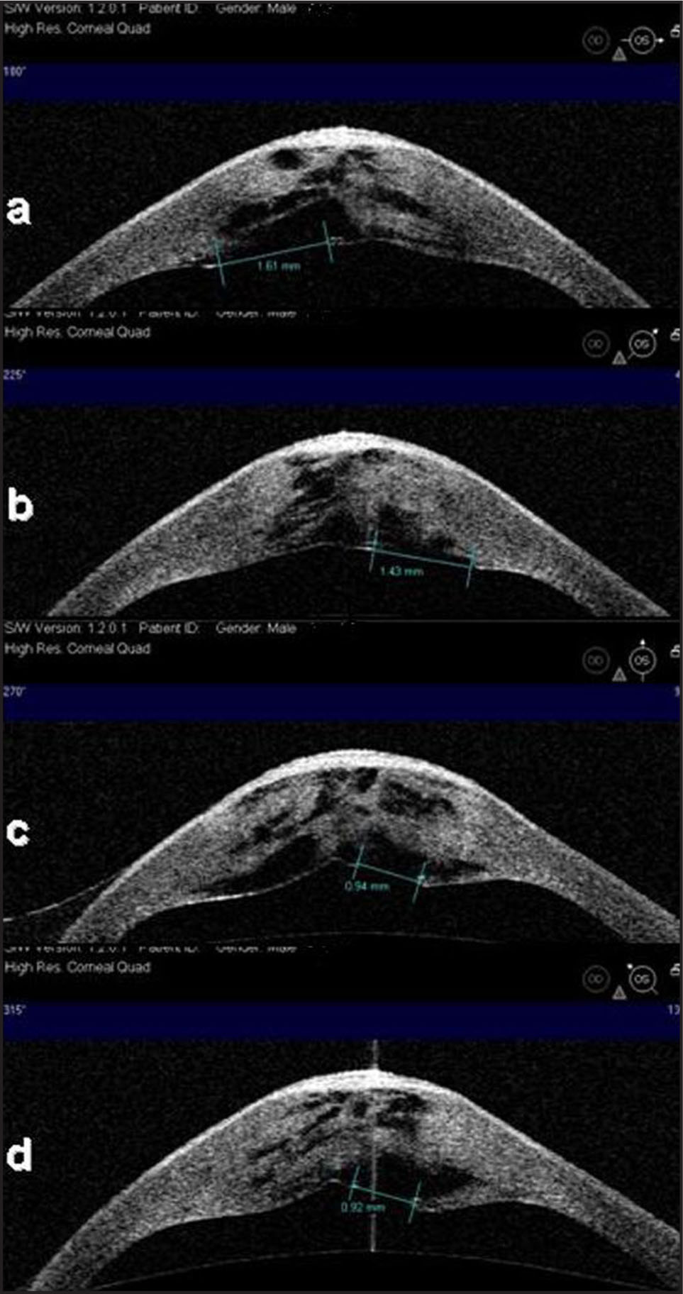 4-Quad High Resolution AS-OCT Image of the Cornea Demonstrating the Polygonal Shape of the Descemet's Break.
