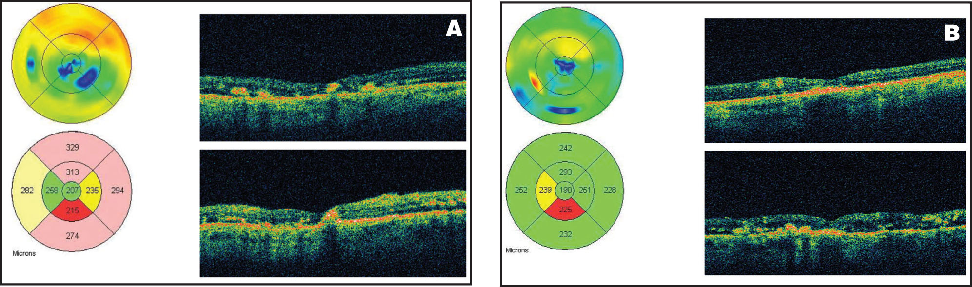 (A) OCT of the Right Eye in Case #1 at 3 Months Following IVTA Injection (4 mg in 0.1 mL), Showing Improvement in Macular Thickening, from 473 Microns to 207 Microns. (B) OCT of the Left Eye at 3 Months Following IVTA Injection, Showing Improvement in Macular Thickening from 303 Microns to 190 Microns.