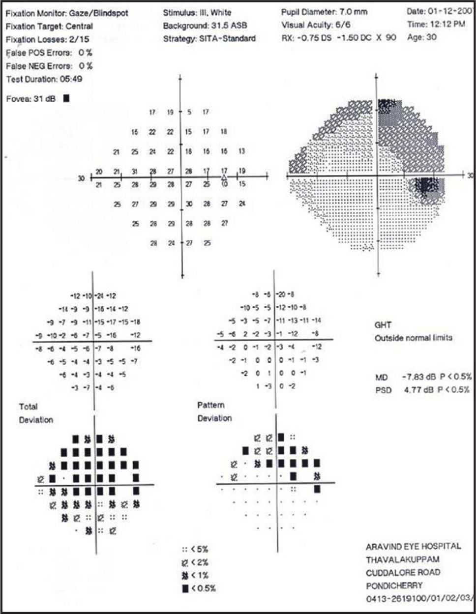 Central Visual Fields Done Using the HFA 24-2 Program Demonstrate the Superior Altitudinal Defect Corresponding to the Inferior Coloboma.