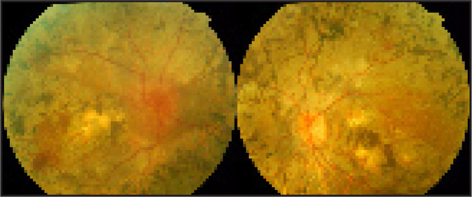 Optic Discs at Presentation Showing Right Optic Papilloedema and Left Optic Atrophy. Bilateral Advanced Retinits Pigmentosa with Posterior Pole Involvement Was also Noted.