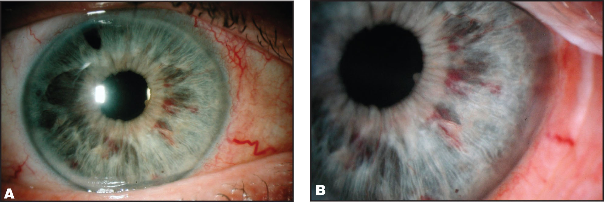(A) Low and (B) High Magnification View of Iris Hemorrhages in a Case of Rubeotic Glaucoma Following Routine Transscleral Diode Laser Cycloablation. The Location of the Hemorrhages in the Mid-Periphery Corresponded with the Presence of the Rubeotic Vessels. A Peripheral Iridotomy Previously Performed Due to a Potentially Occludable Drainage Angle is also Visible.