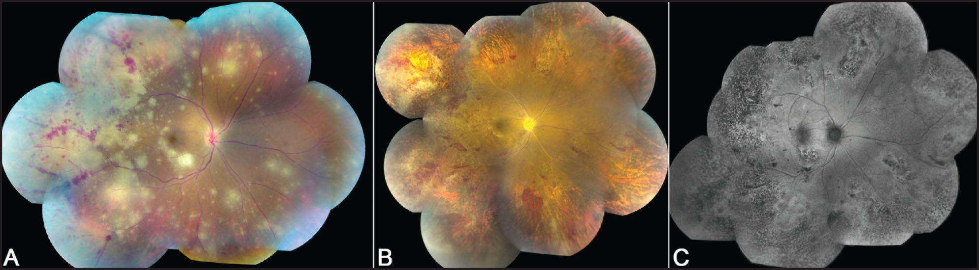 Photo Montage Demonstrating Widespread Retinal Opacification and Perivascular Hemorrhage at Initial Visit (A). Widespread Retinal Pigment Epithelium Atrophy and Necrosis Is Seen at the 1-Month Follow-Up (B) with Multiple Regions of Stippled Hyperfluorescence or Hypofluorescence on the Fundus Autofluorescence Image Corresponding to Widespread Retinal Pigment Epithelium Atrophy (C).