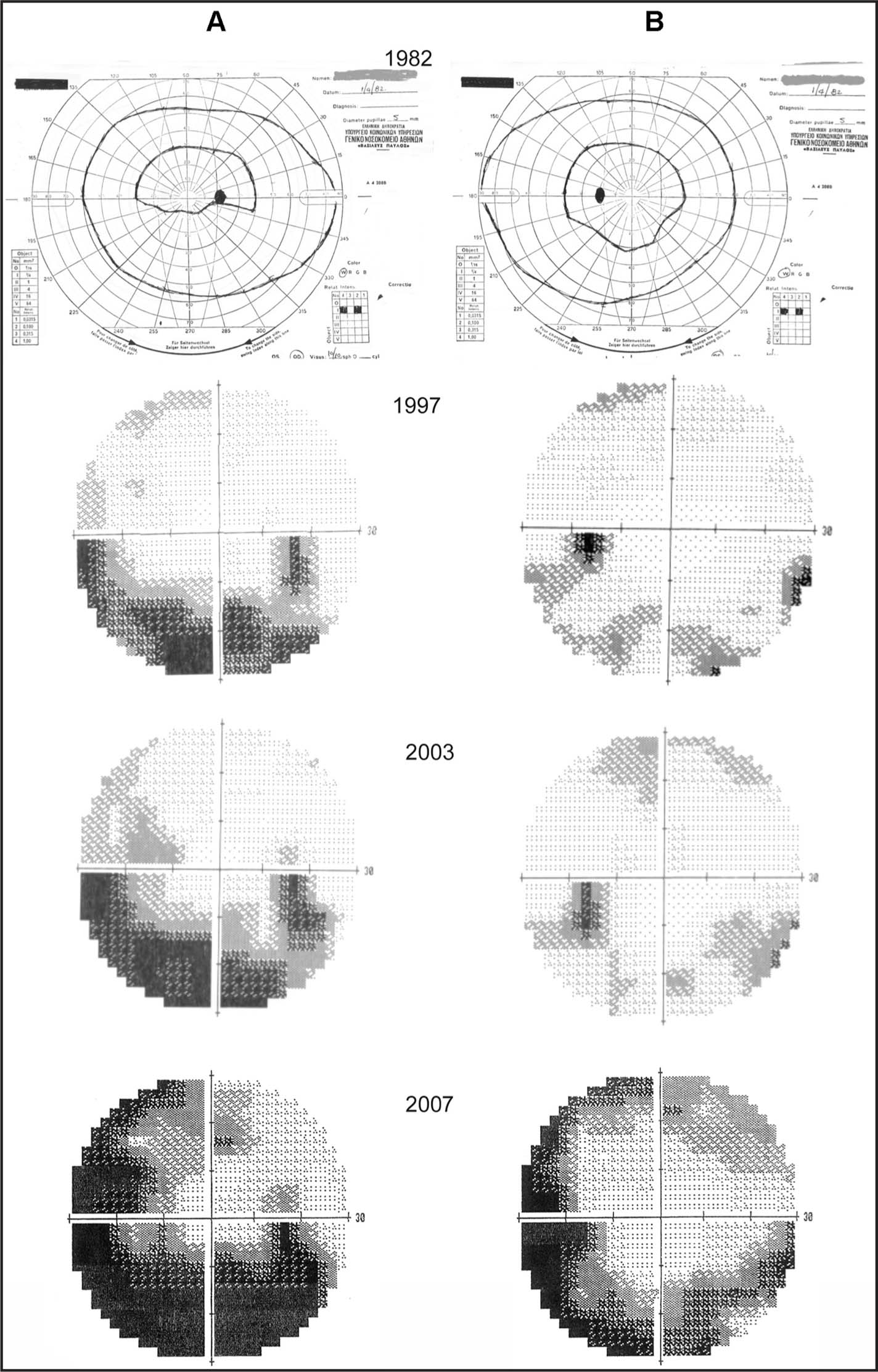 The Gradual Deterioration of Kinetic and Automated Perimetry in Both Eyes During the Follow-Up Period Is Evident. The Visual Field Changes Are More Prominent in the Right Eye Due to the Extension of the Drusen Beyond the Optic Disc Margin. (A) Right Eye. (B) Left Eye.