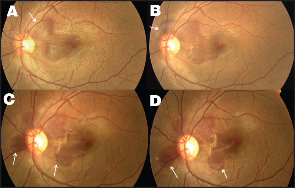 Case 2. Sequential Fundus Photographs Show Displacement of Submacular Bleed Following Gas Injection. Progressive Displaced Edge of the Bleed at Each Visit (white Arrows) and Unmasking of Choroidal Rupture Are Clearly Seen. (A) Seven Days After Injury. (B) Thirty-Six Hours After Gas Injection. (C) Seven Days After Gas Injection. (D) Twelve Days After Gas Injection.