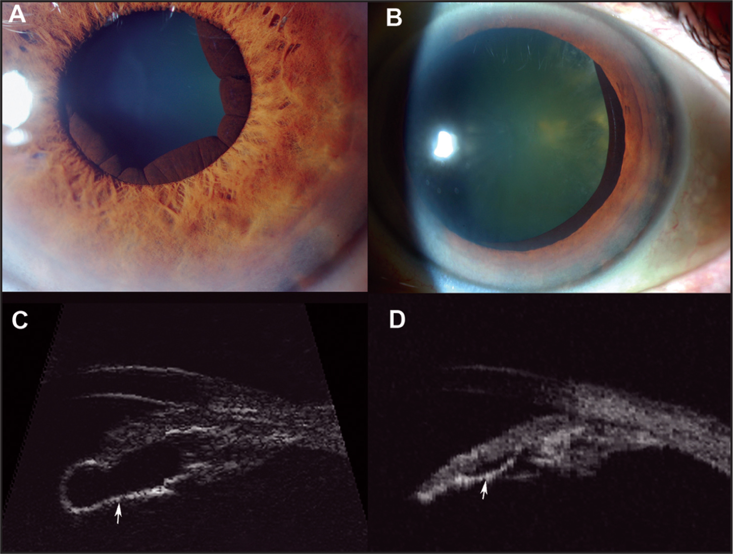 Case 2. Slit-Lamp Photography of Iris Pigment Epithelial Cyst Before (A) and After (B) Laser Cystotomy. Regressed Cyst was Seen only After Pupillary Dilation. High-Frequency Ultrasound in Longitudinal Section (C) Before (at 20 MHz) and (D) After (at 35 MHz) Laser Treatment. Arrow Denotes Regression of Cyst.